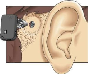 Schematic drawing of the BAHA componants and where it is fitted in relation to the ear